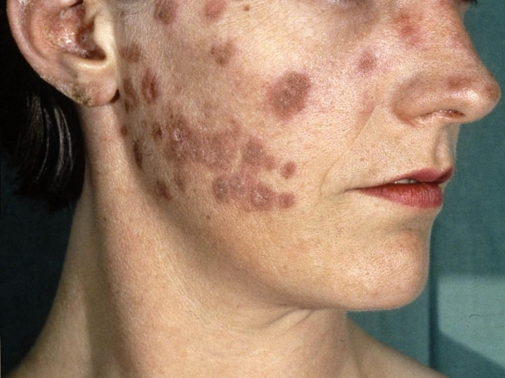 lupus erythematodes huidziekten