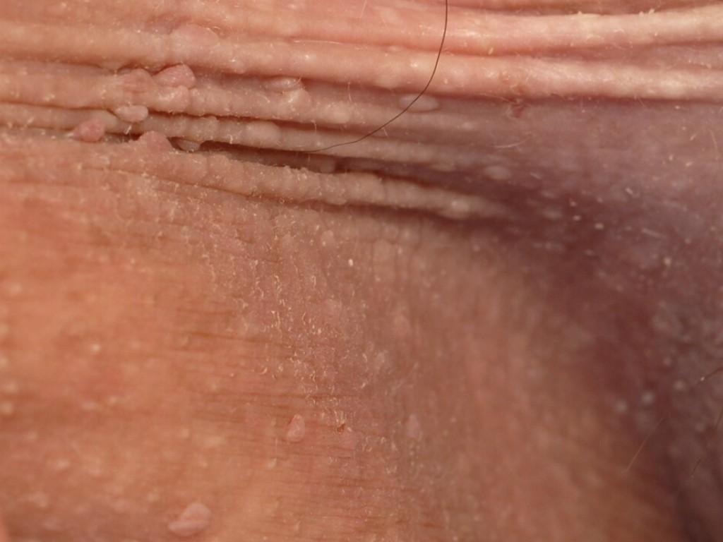 Cowden syndroom - Huidziekten.nl (Dermatologie)