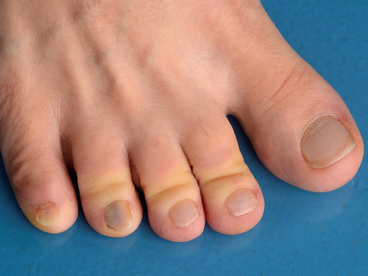 Het afnemen van een nagelbiopt