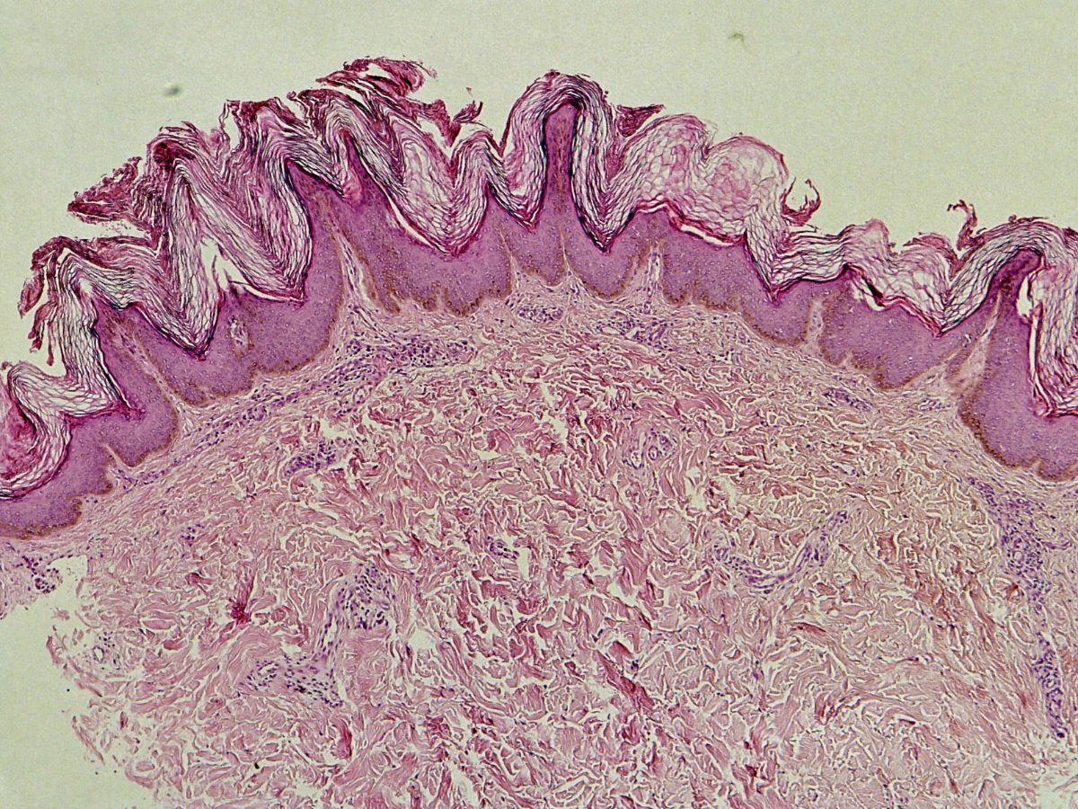 Acanthosis nigricans en acanthosis nigricans maligna