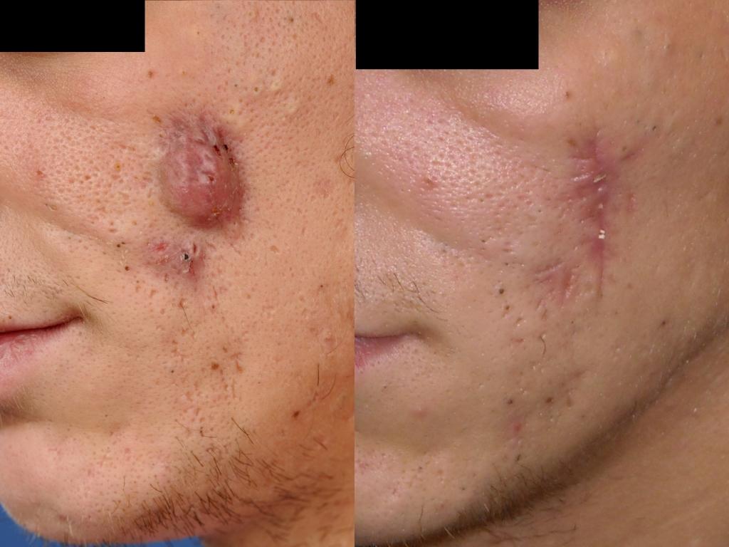 acne conglobata huidziekten