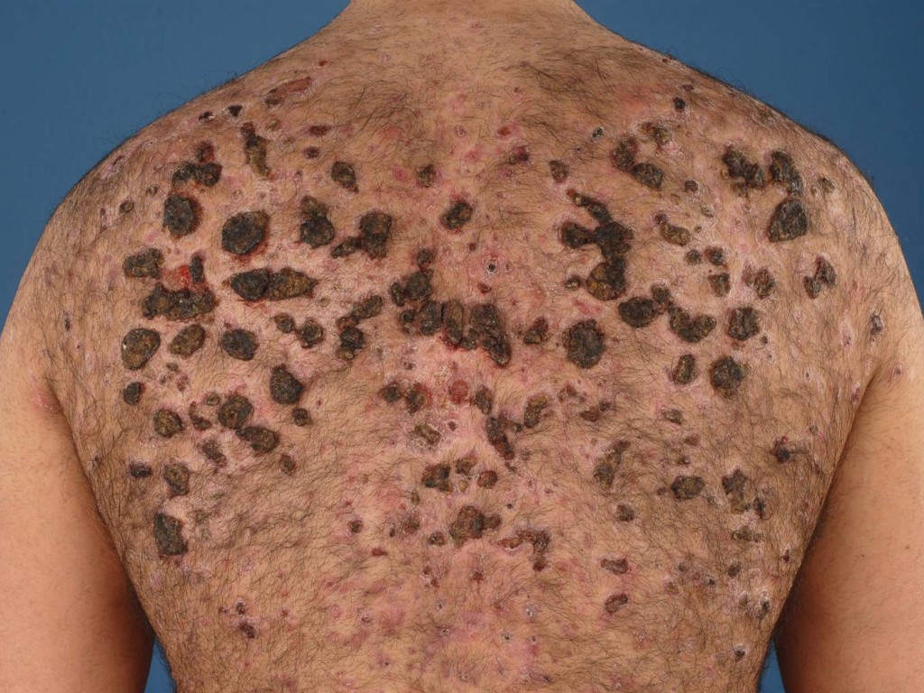 steroids acne on arms