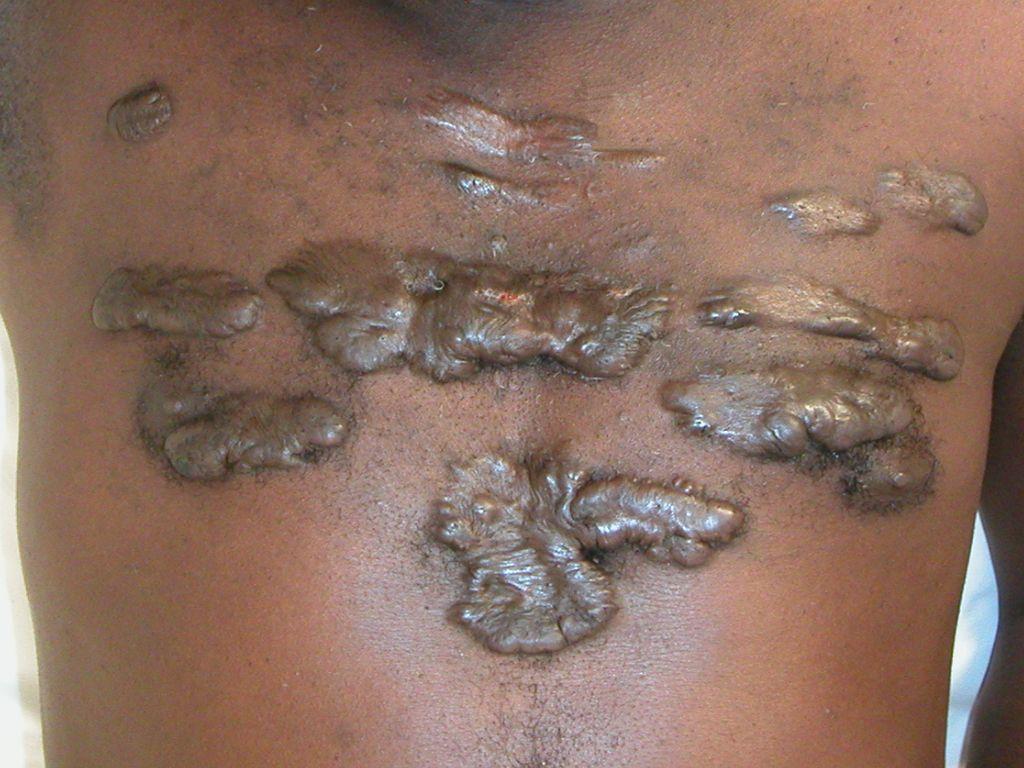 acne vulgaris huidziekten