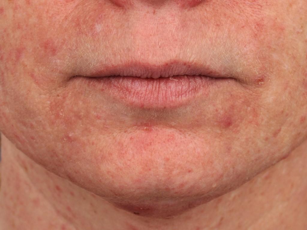 acne lager spånga