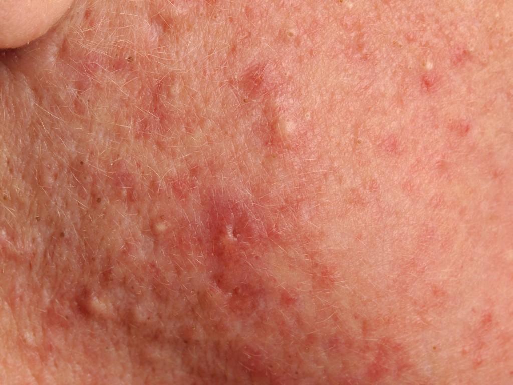 acne tarda