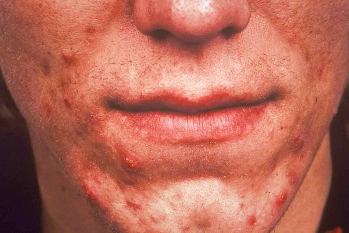 Perioral Dermatitis – Rash Around the Mouth – Mouth Rash