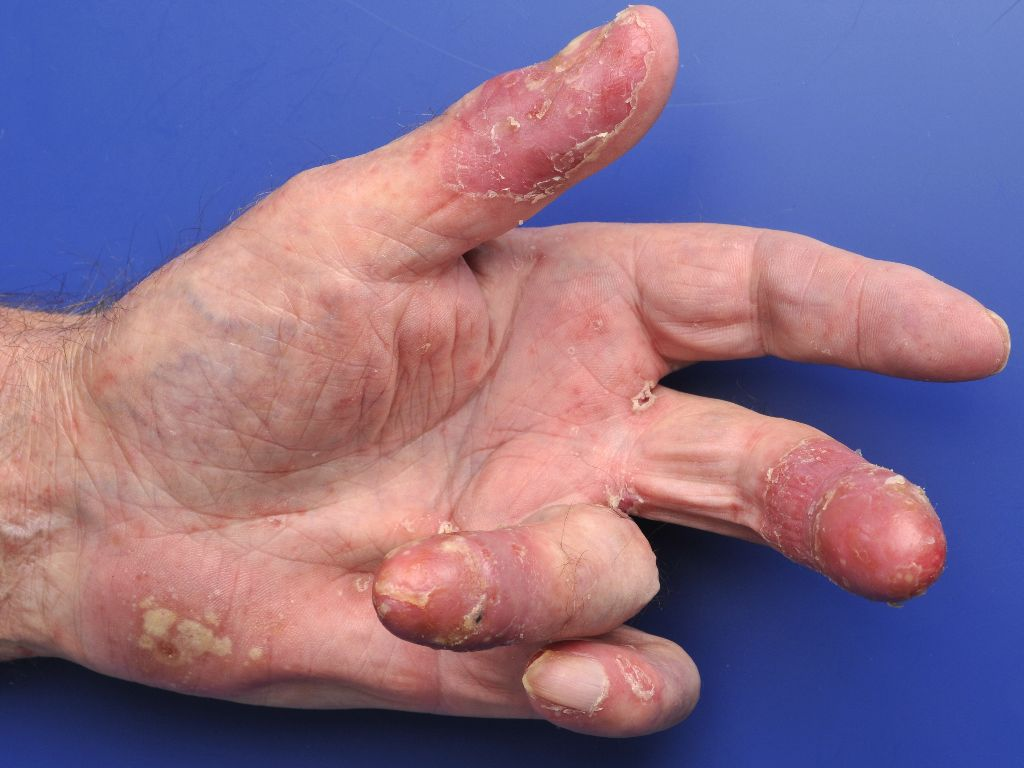 2012 ICD9CM Diagnosis Code 6961  Other psoriasis