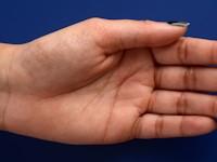 Acrokeratoelastoidosis of Costa Symptoms, Diagnosis ...