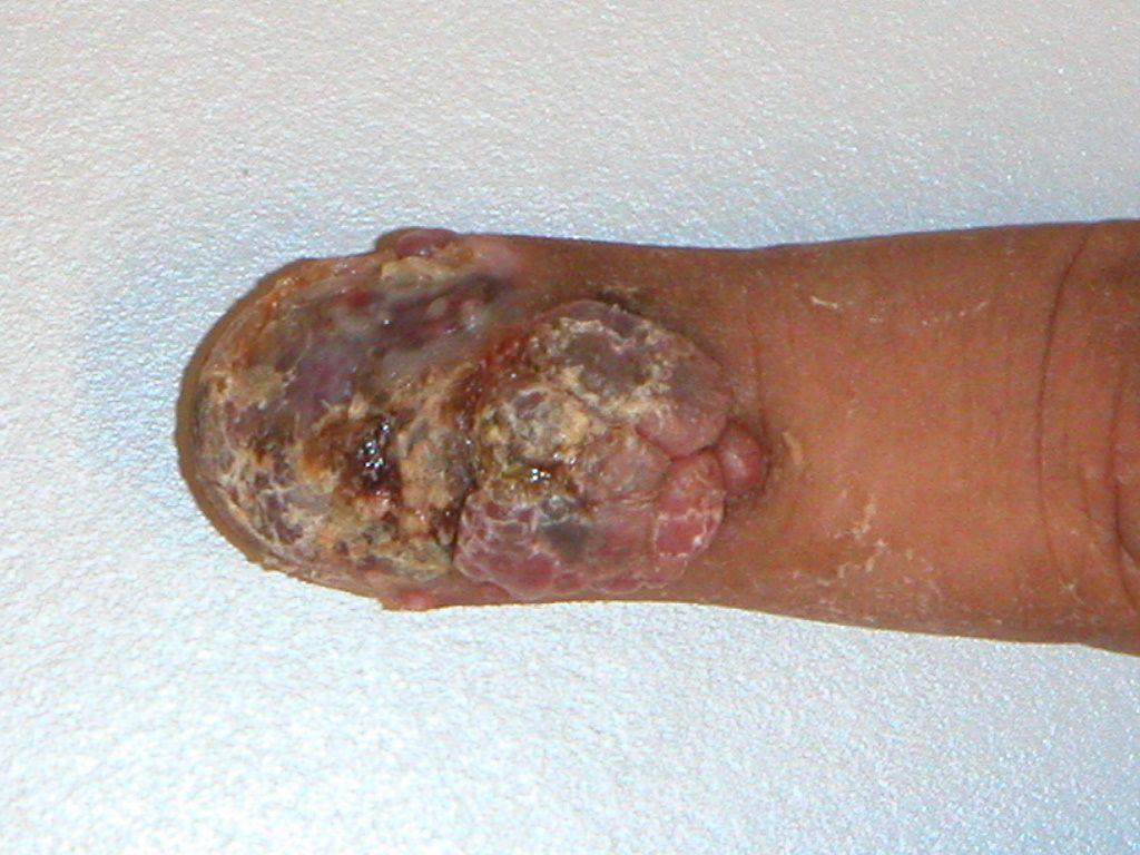 Melanoom (melanoma mal...