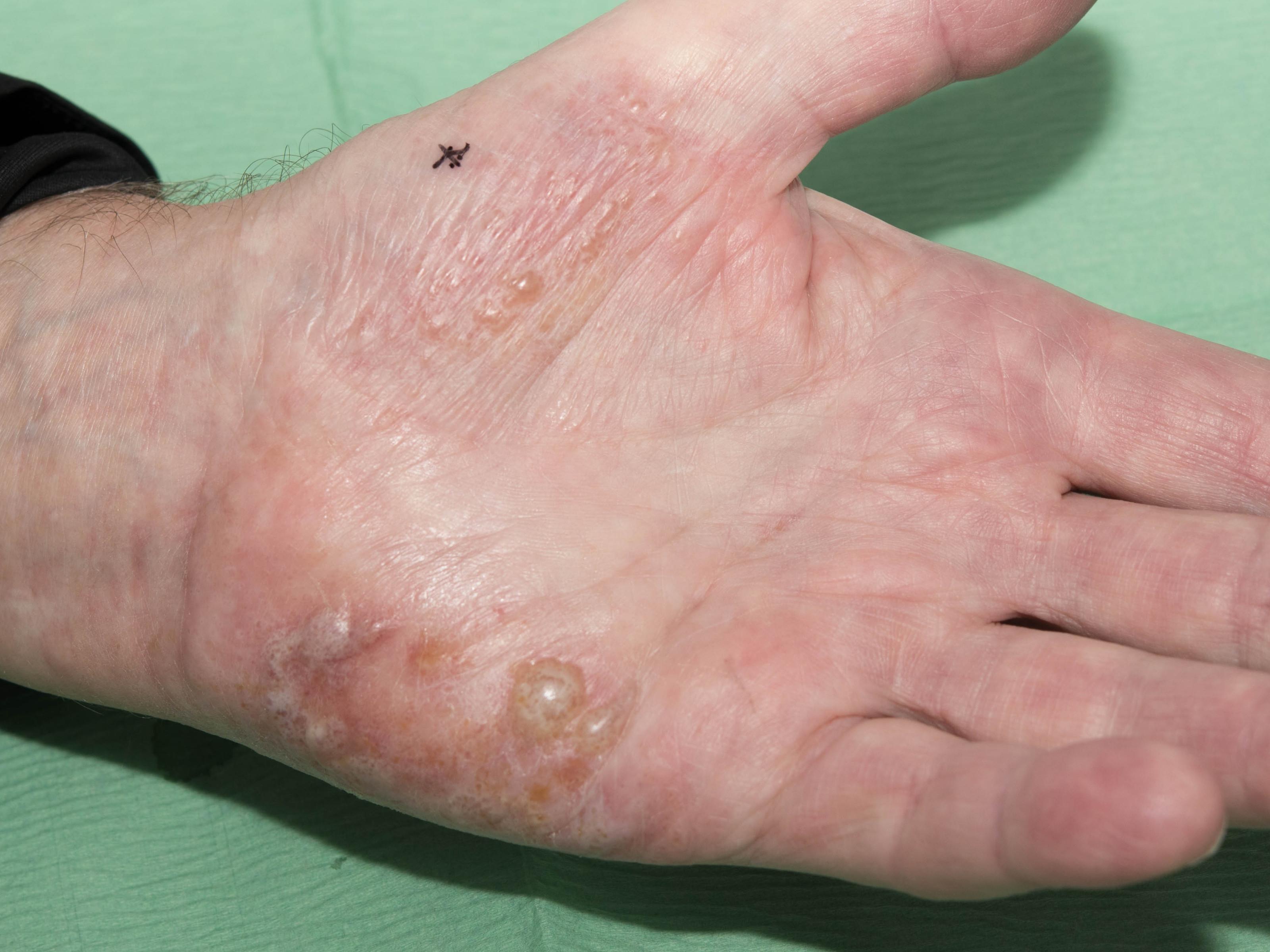fingers eczema