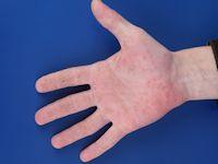psoriasis handpalm