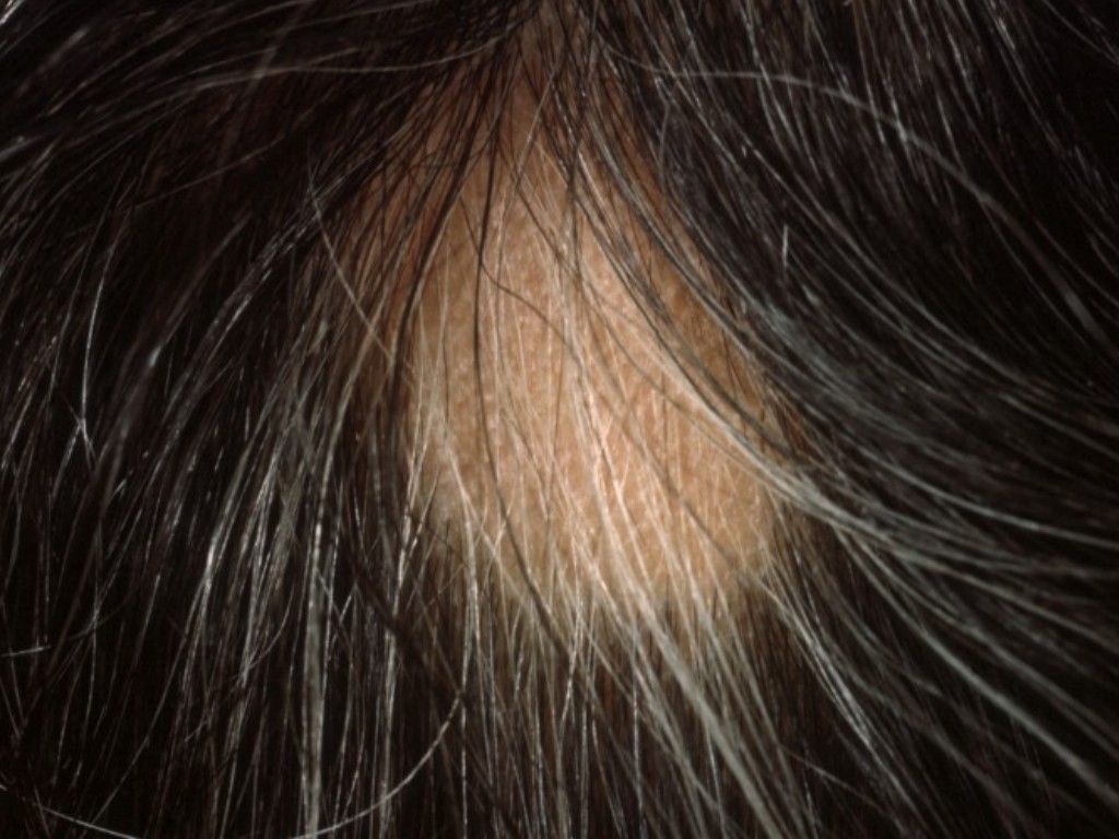 wat is alopecia areata