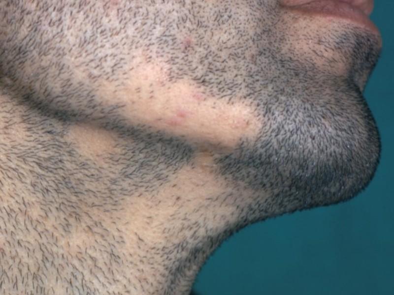 alopecia huidziekten