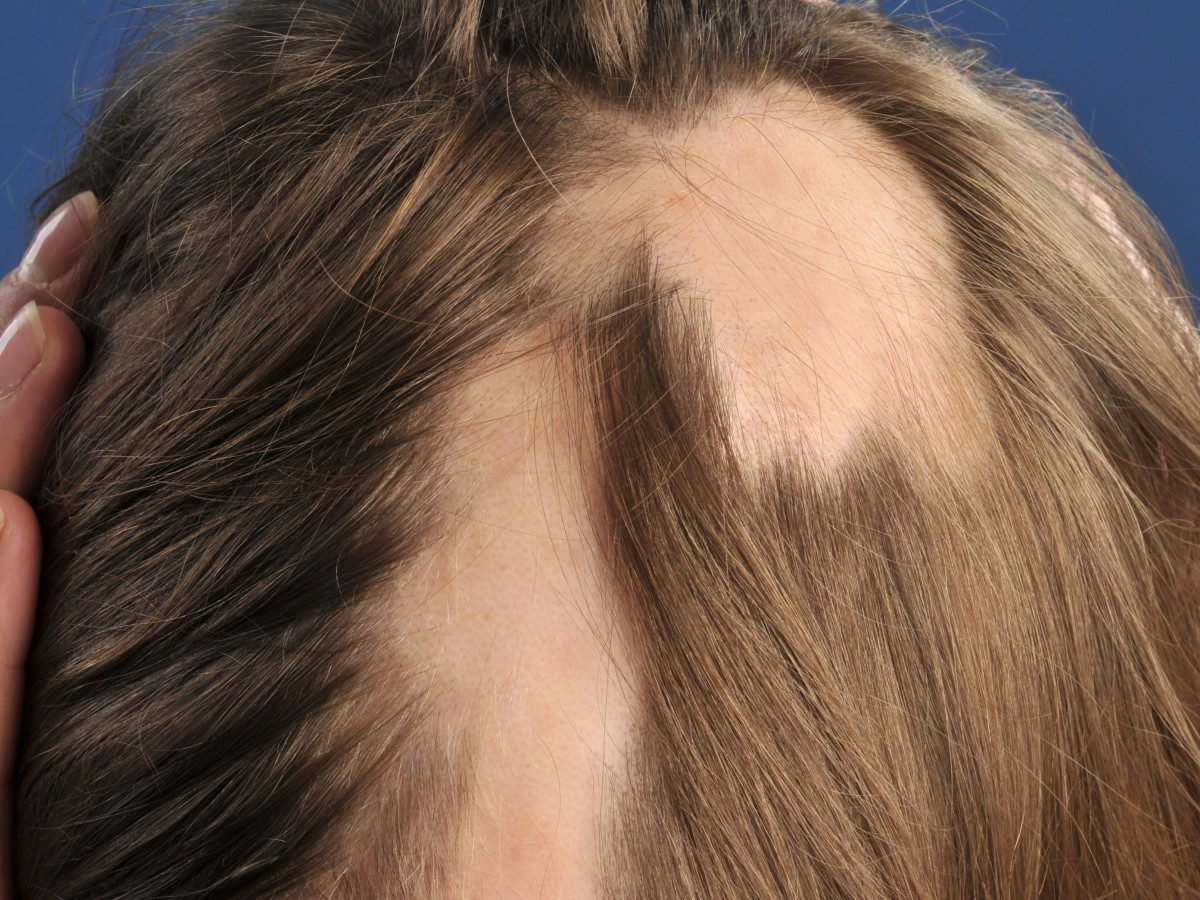 alalopecia areata is a condition that What is it alopecia areata is a condition where there is loss of hair on the scalp and/or other parts of the body it can occur at any age how does it develop.