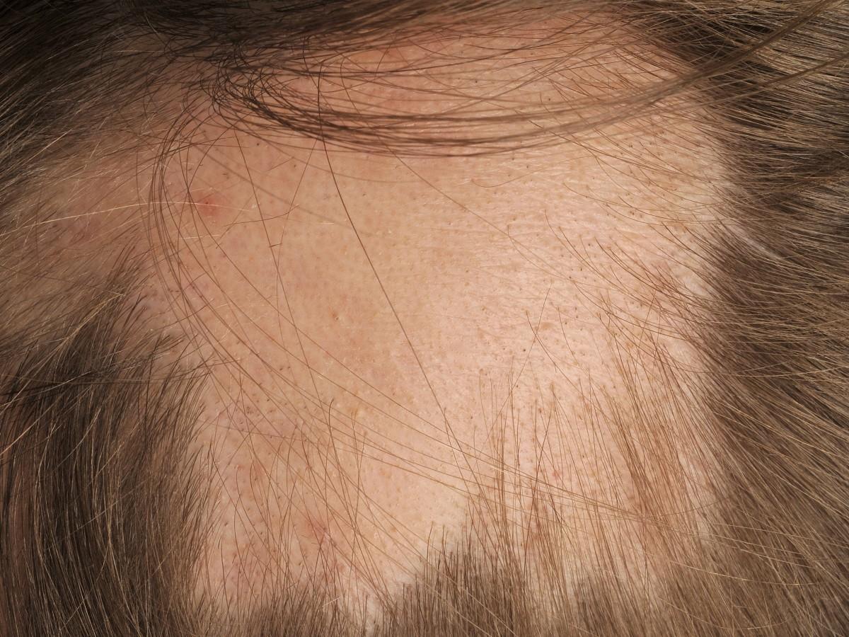 Alopecia areata... Alopecia Areata Totalis