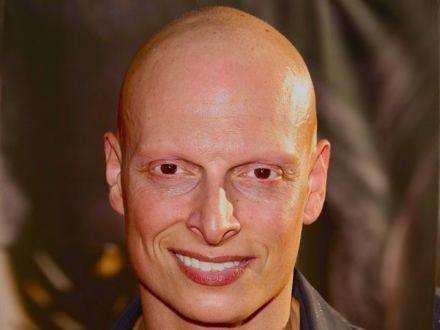 alopecia universalis oorzaak