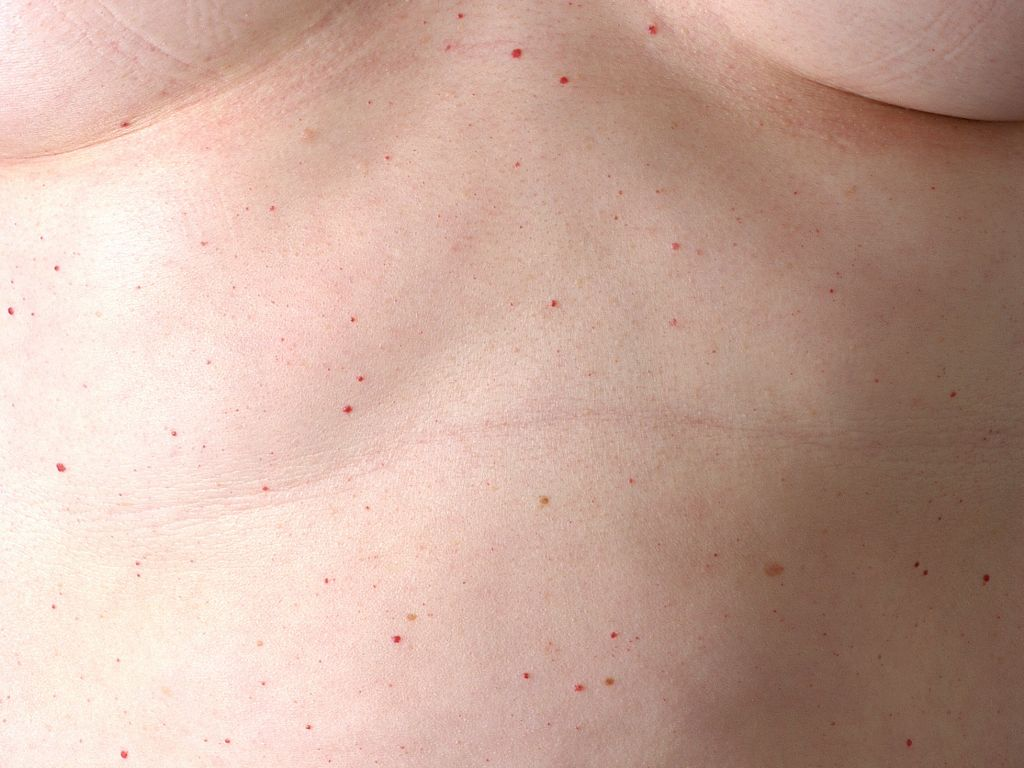 Cherry Angiomas - Pictures, Symptoms, Causes, Treatment ...