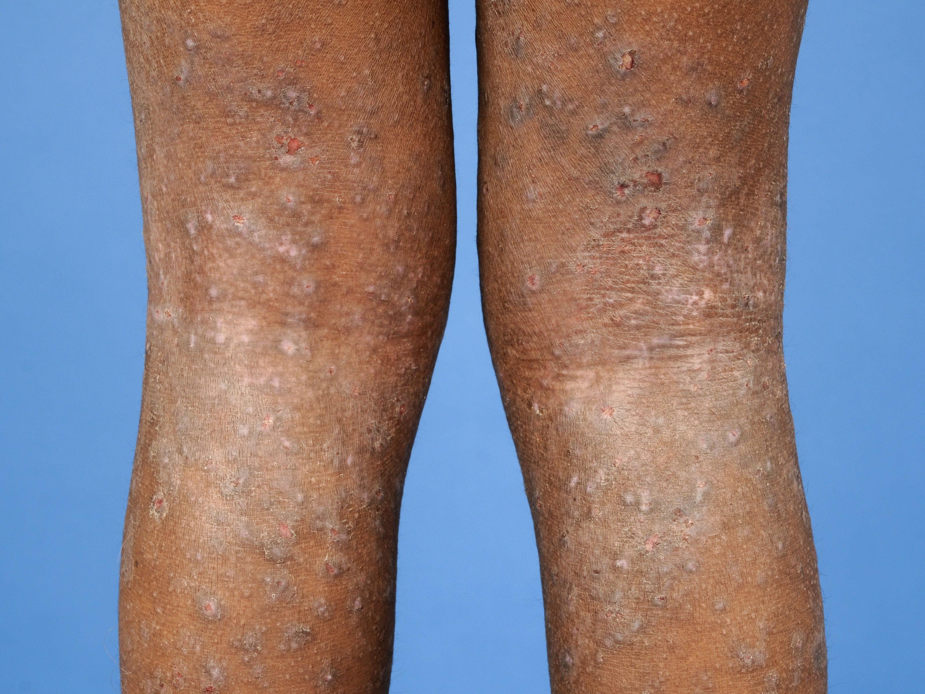 herpes rash on legs