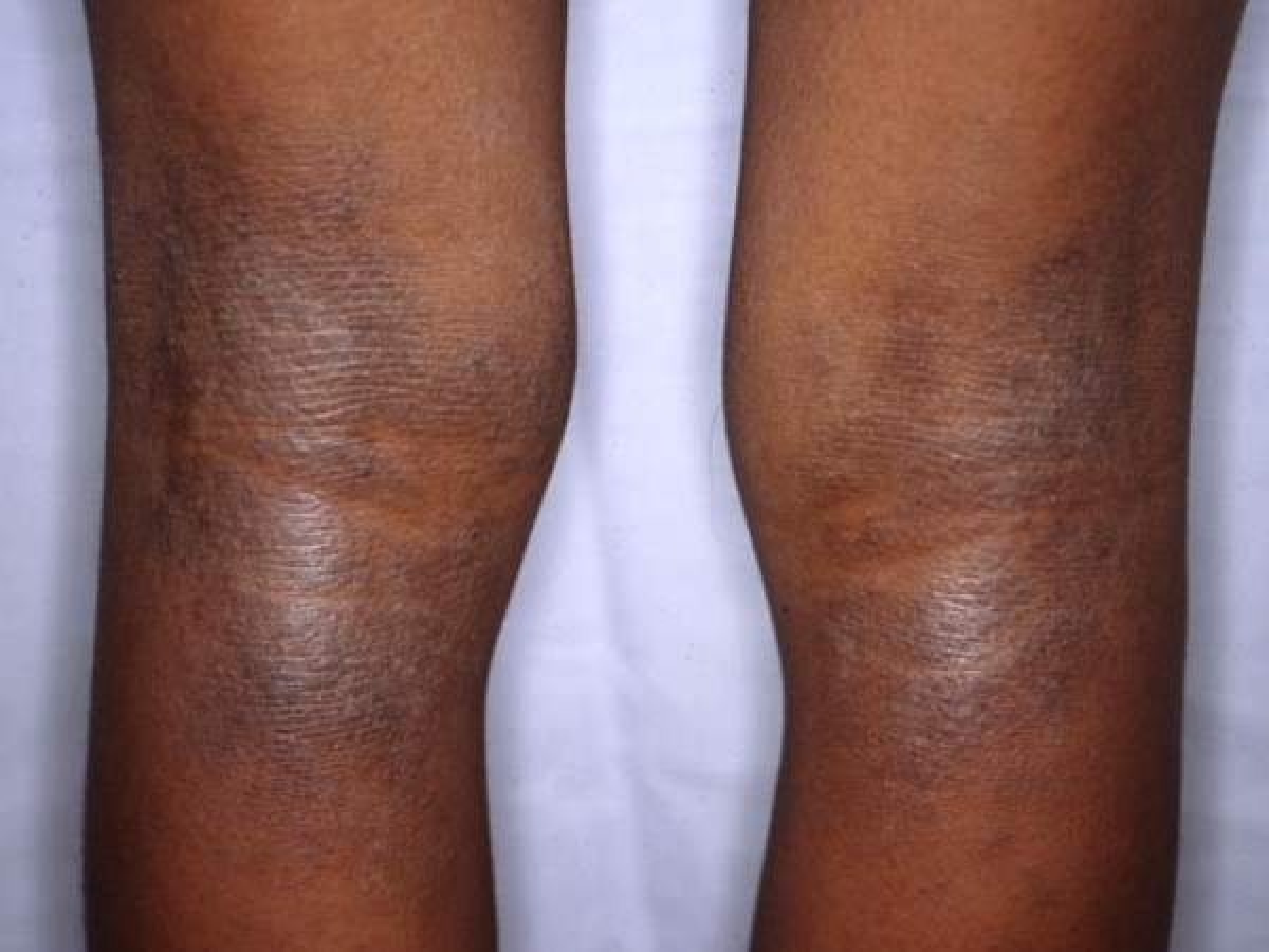 : National Eczema Society