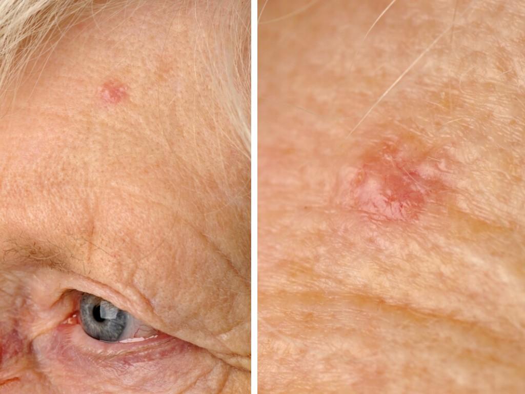 basaalcelcarcinoom huidziekten
