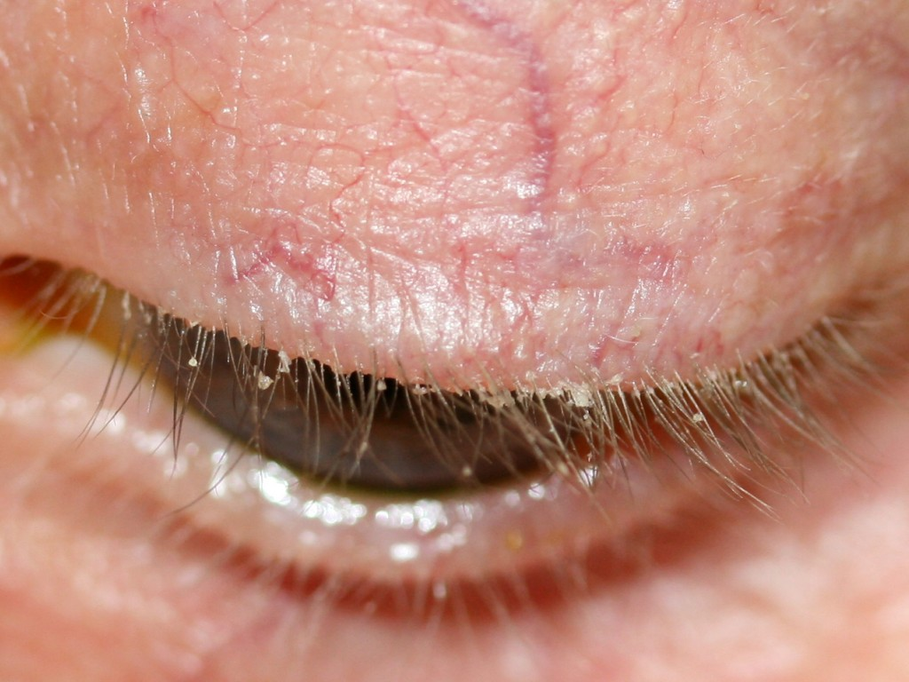Pictures of Eye Diseases and Problems - Blepharitis
