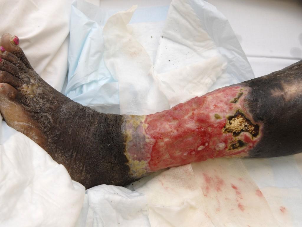 Calcinosis Cutis (Calcium Deposits in the Skin ...