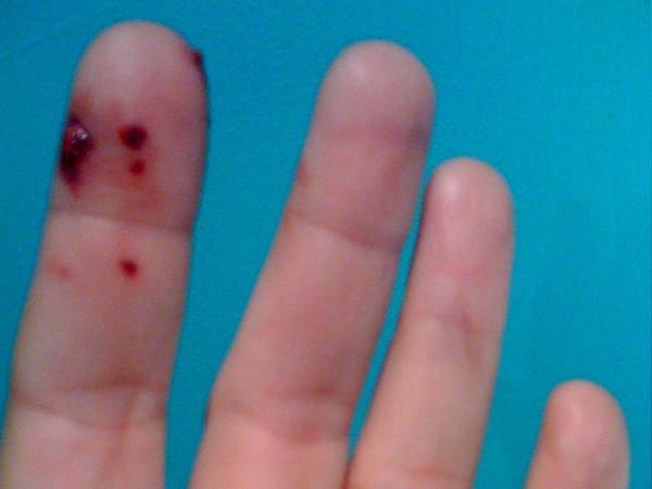 huidziekten bij katten