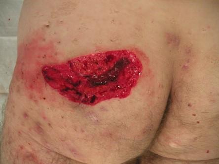 zwelling onder oksel