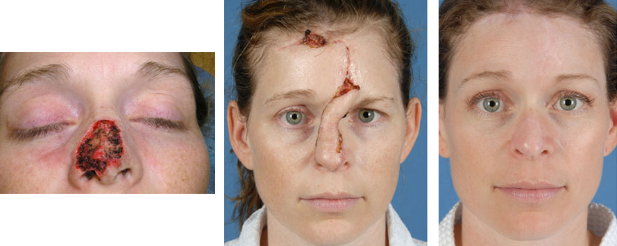 Image Result For Alternative To Mohs Surgery