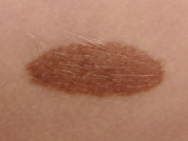 melanoom huid