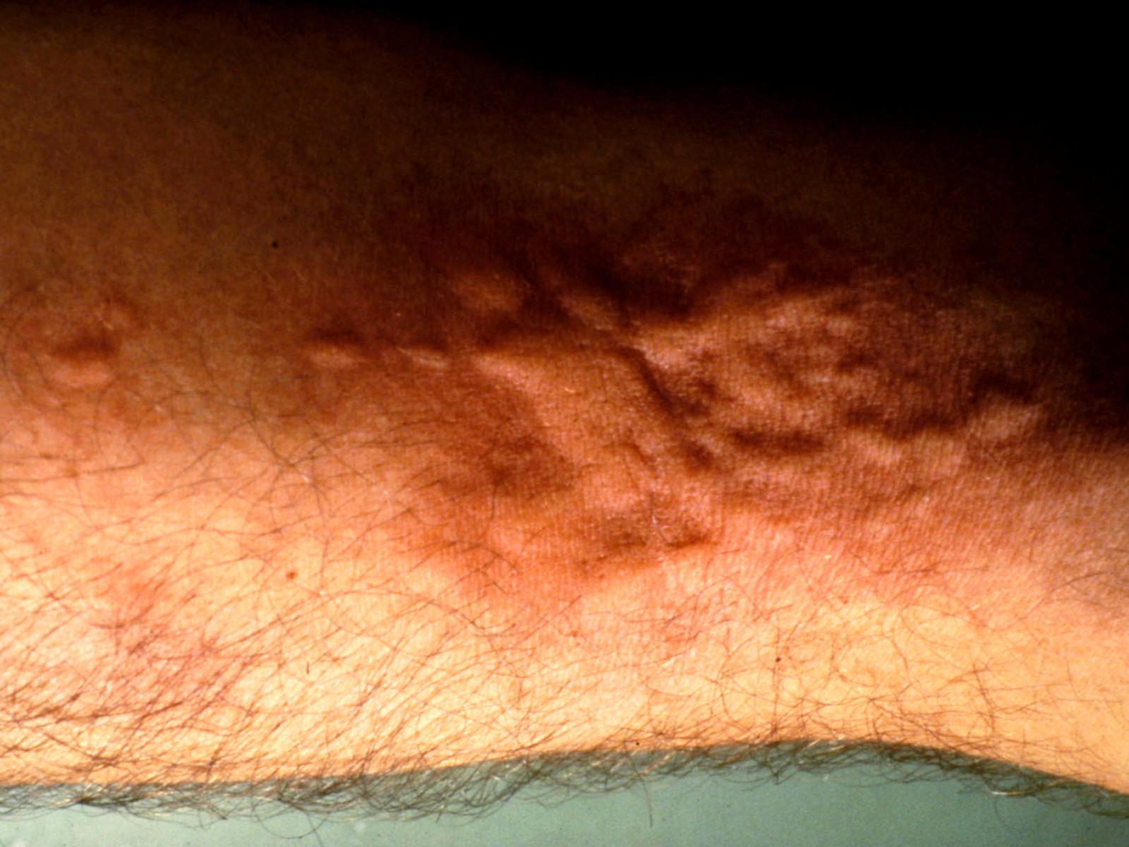 allergie latex