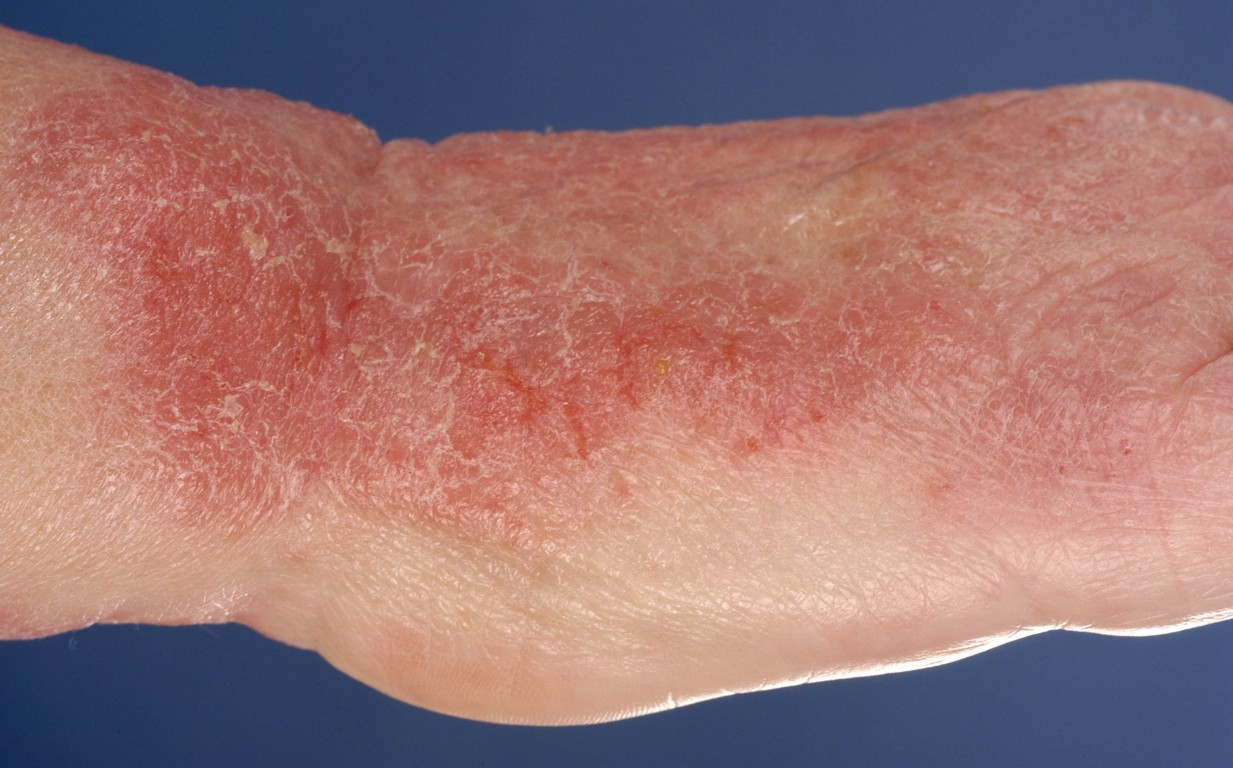 allergisch eczeem