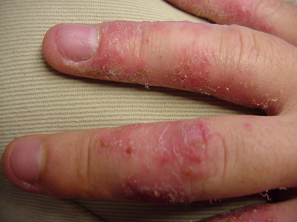 Herpes Palm Hand - Doctor answers on HealthTap