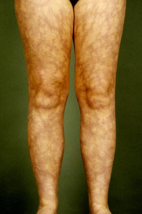 patroon huid benen