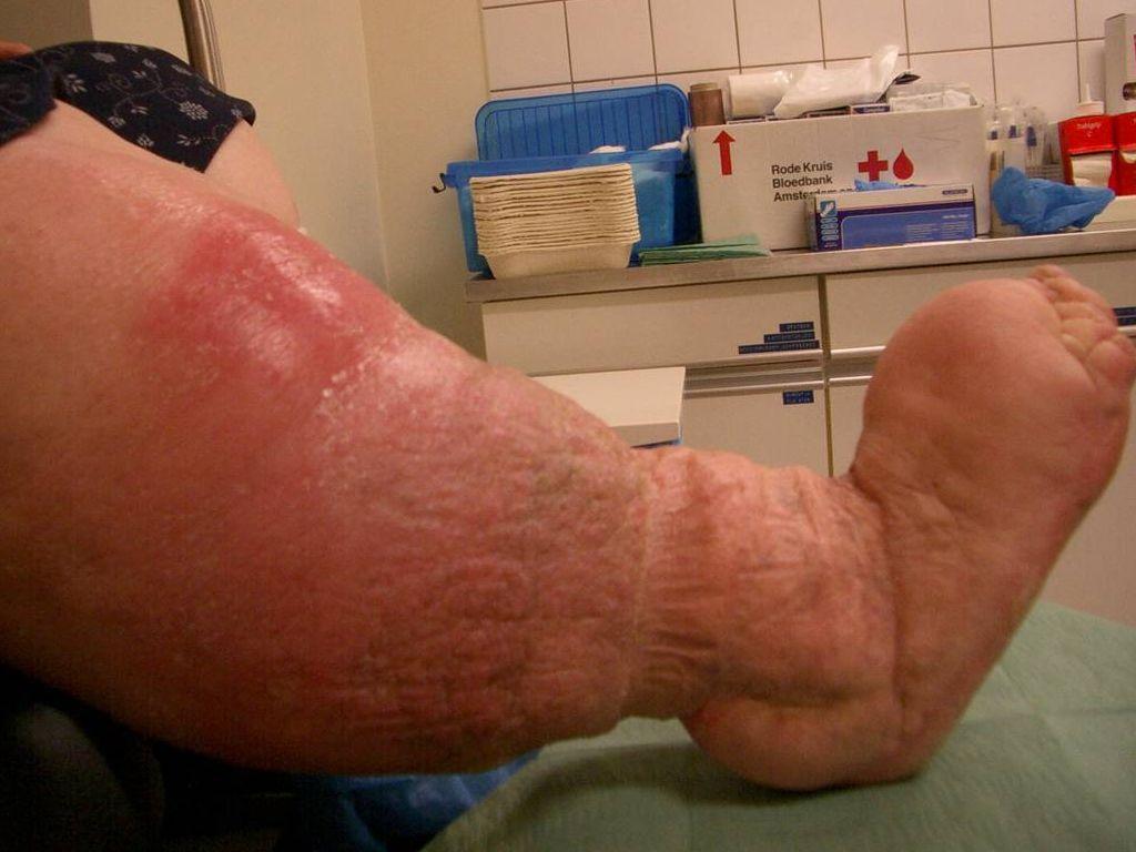 ulcus cruris venosum
