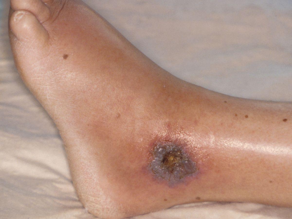 ulcus cruris complicaties