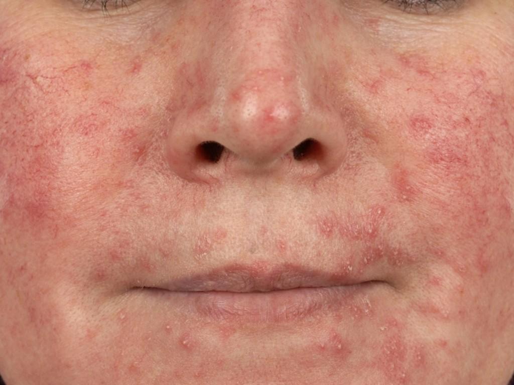 Demodex | huidinfo.nl | informatiefolder van de dermatoloog