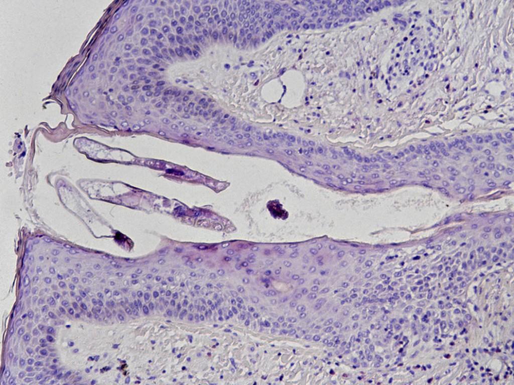 Demodex folliculitis - Huidarts.com