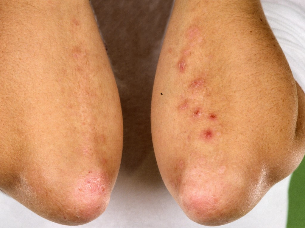 Dermatomyositis - Pictures, Causes, Prognosis, Treatment ...