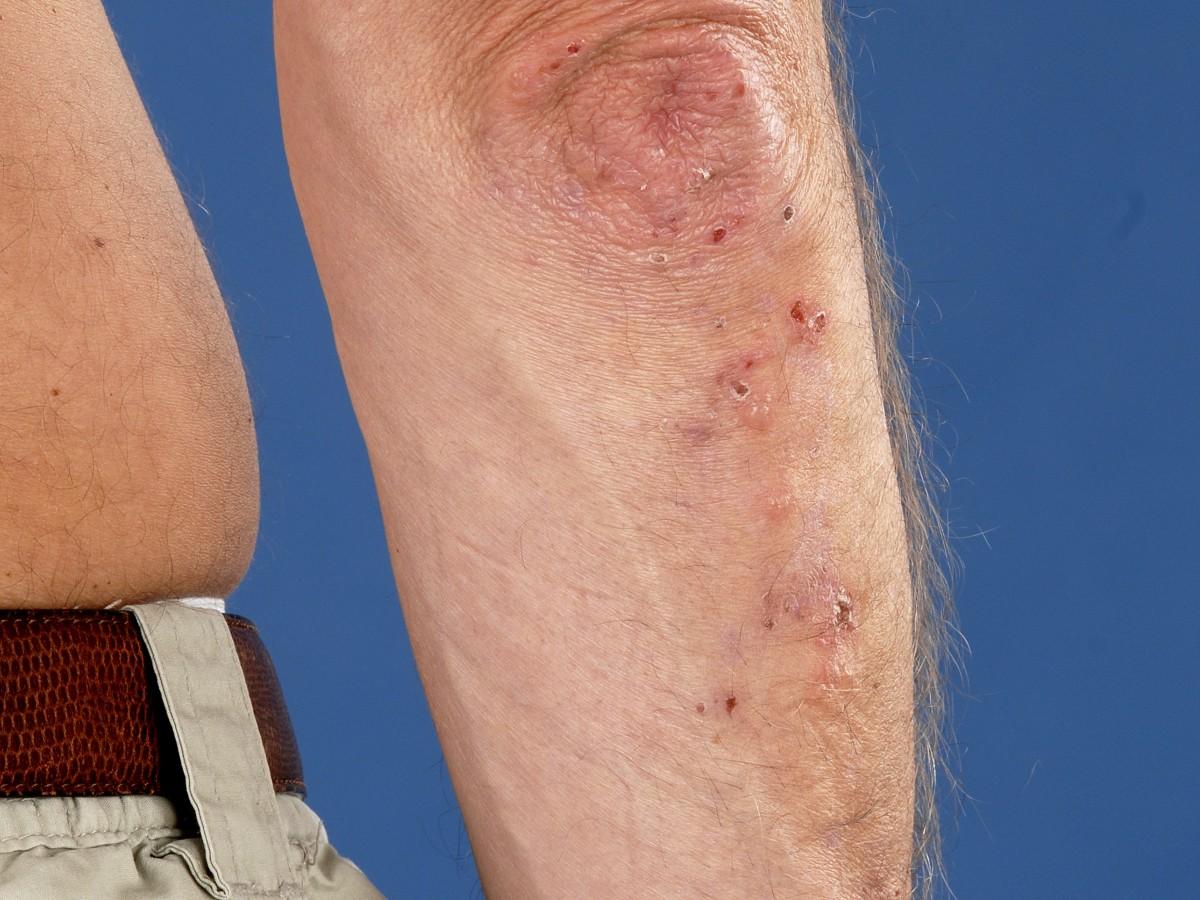 dermatitis huidziekten