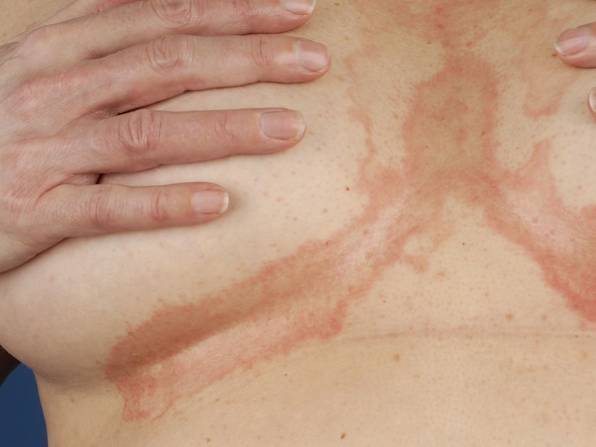 scabies under breasts