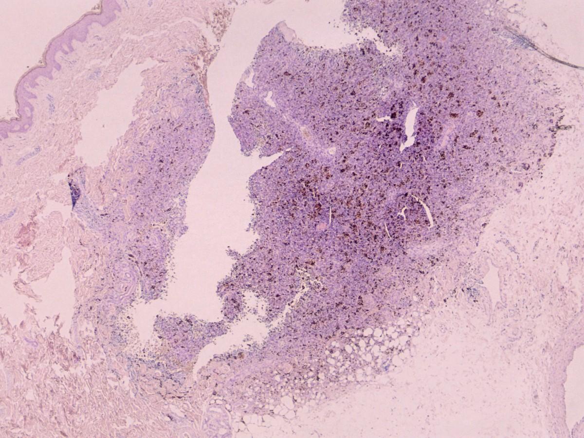 Dermatofibrosarcoma protuberans - Huidarts.com