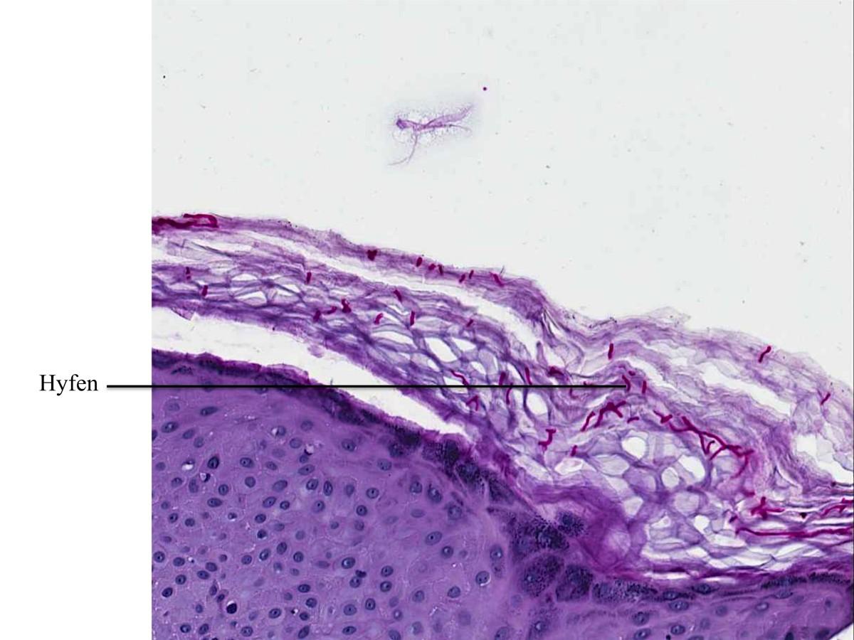 Dermatomycose, PAS kleuring (klik op foto voor vergroting) [bron ...