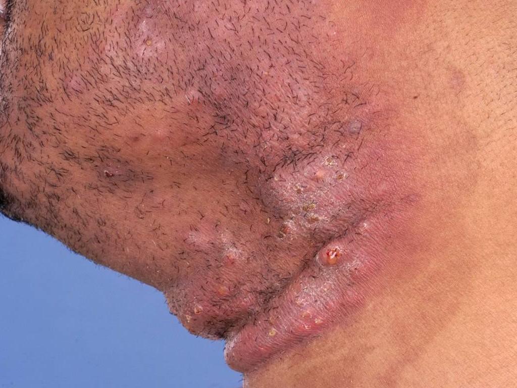 Tinea Barbae tinea barbae (dermatomycosis barbae, schimmelinfectie van ...