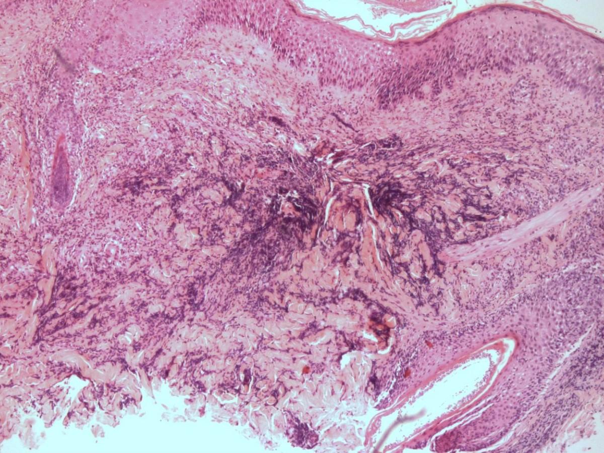 schimmelinfectie symptomen vrouw