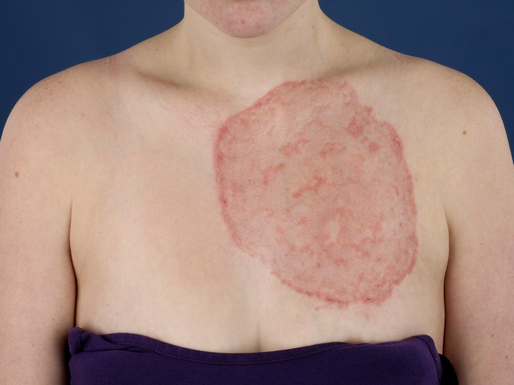 Ringworm Pictures, Treatment, and Tinea Facts - MedicineNet