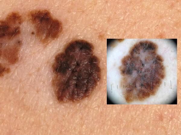 Dermatoscopie cursus