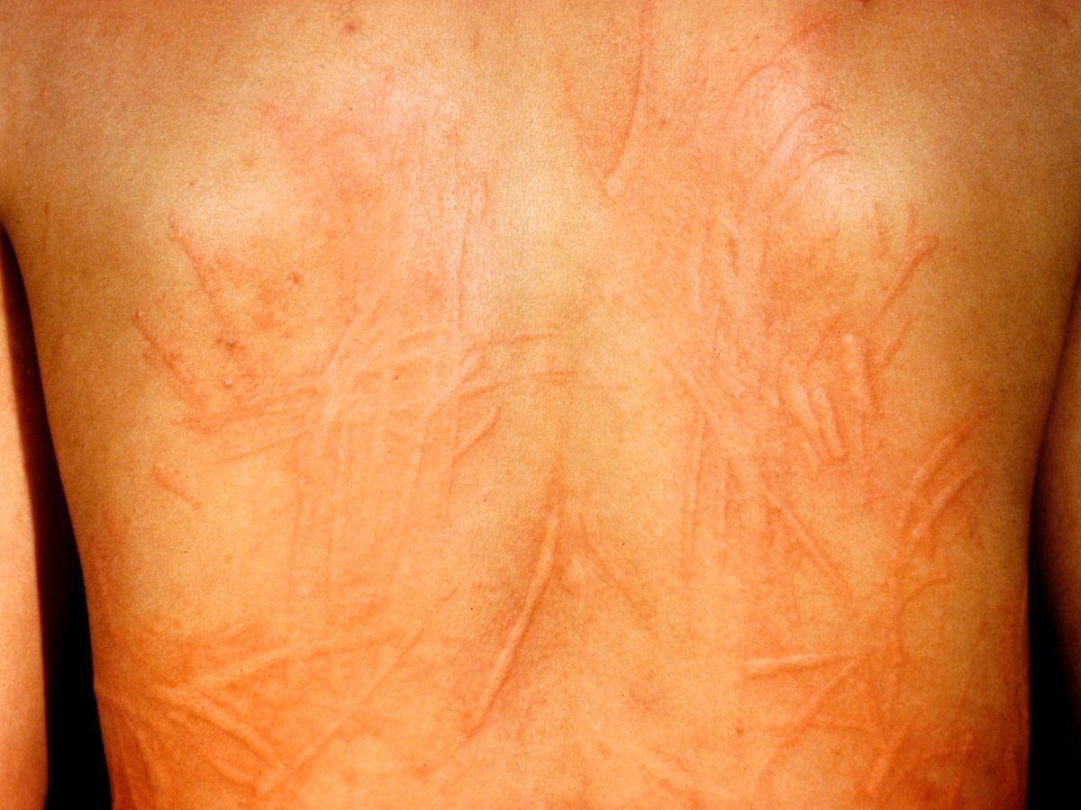 urticaria huidziekten