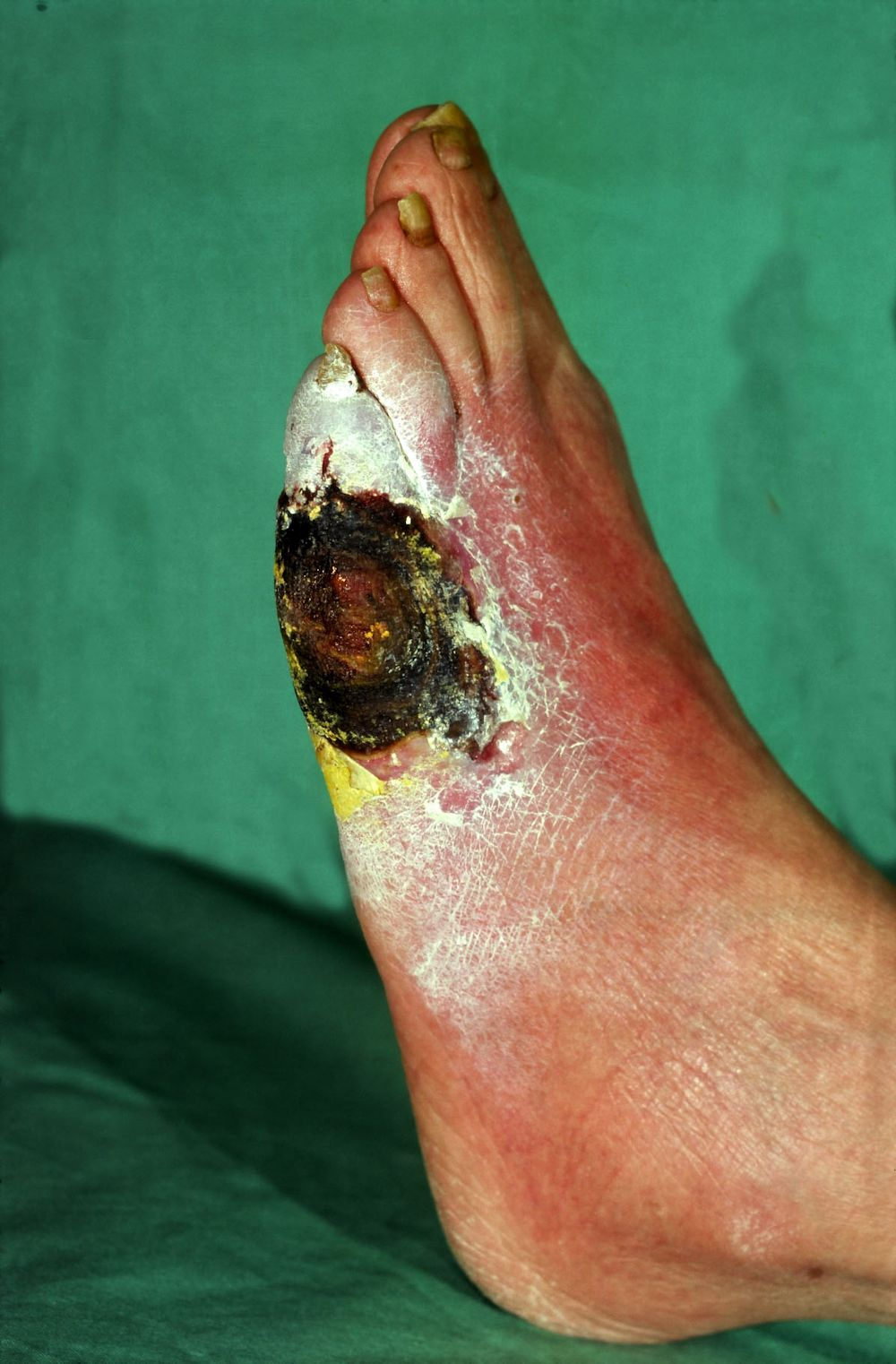 behandeling ulcus cruris
