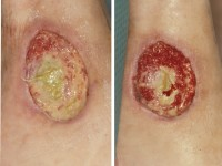 symptomen trombose in kuit